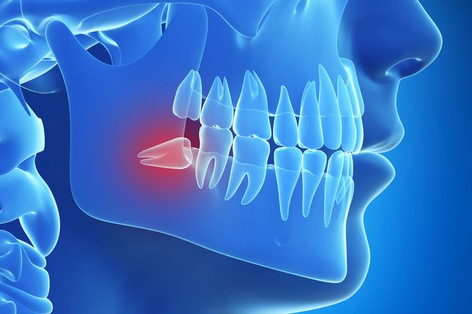 Illustration of teeth and jaw in blue with impacted wisdom tooth highlighted in red