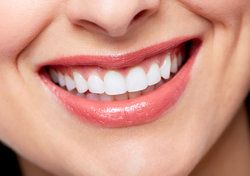 Close up of a woman's bright, white smile