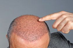 Manhattan Hair Transplants and Psoriasis