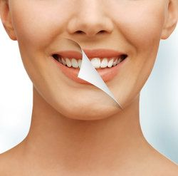 Albuquerque Teeth Whitening