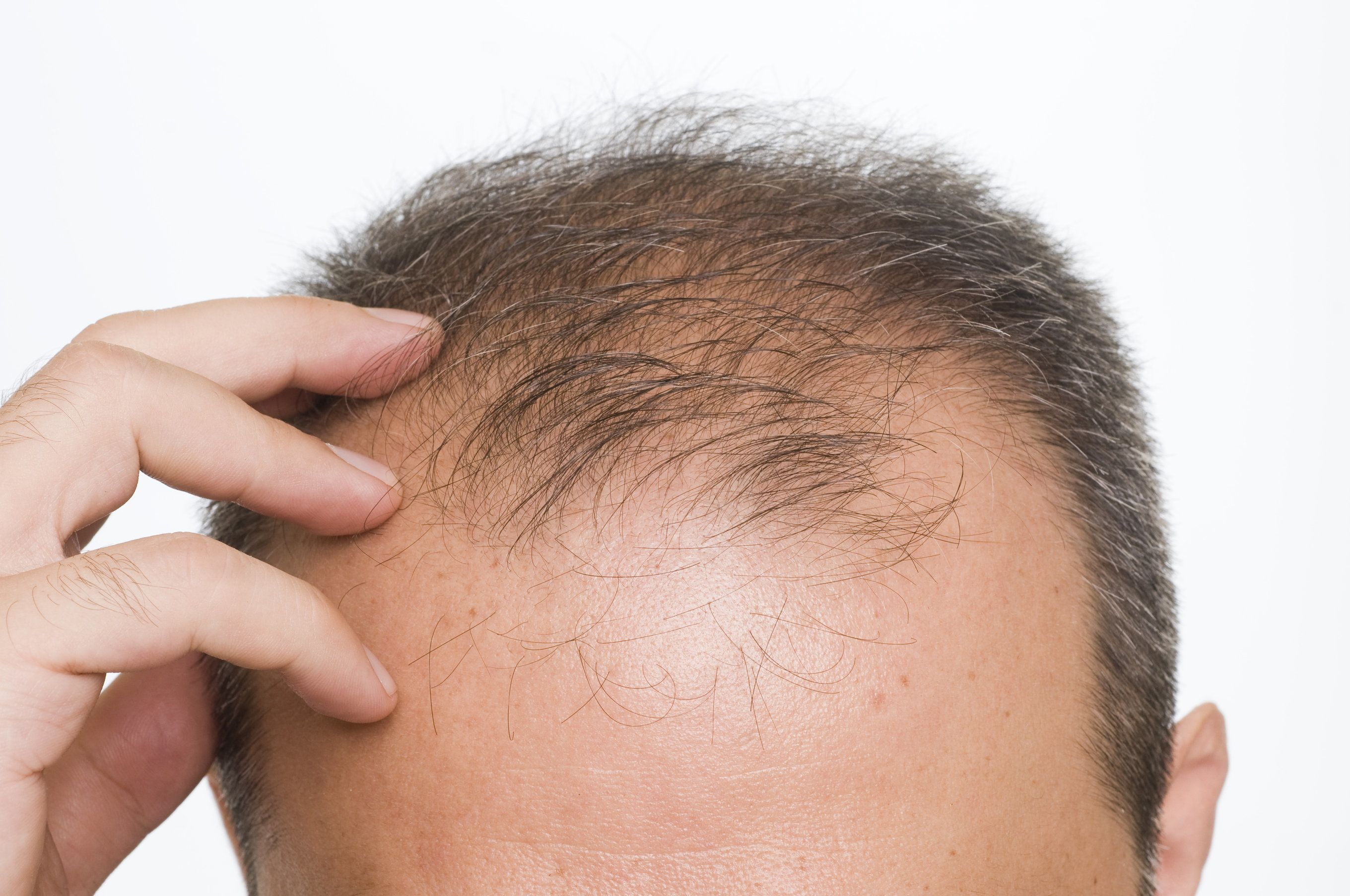 Thinning hair on the scalp