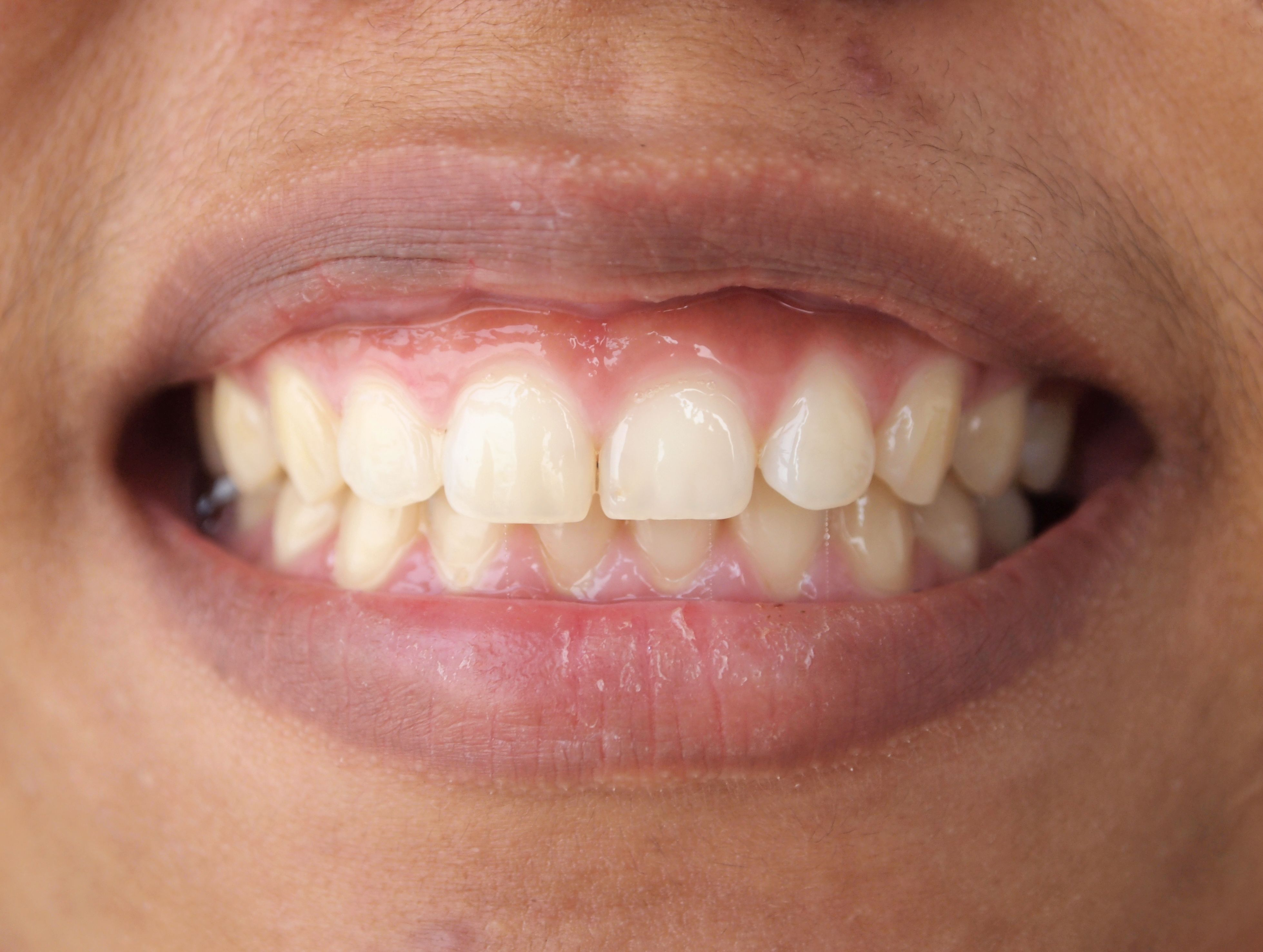 Up close photo of person with gummy smile
