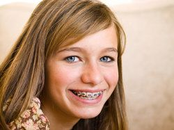 Young girl with bright white teeth wearing traditional metal braces