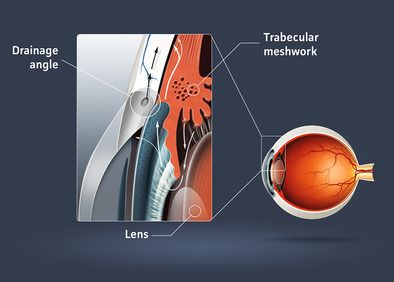 A graphic showing open angle glaucoma.