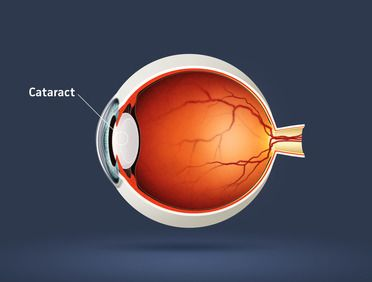 Illustration of cataract.