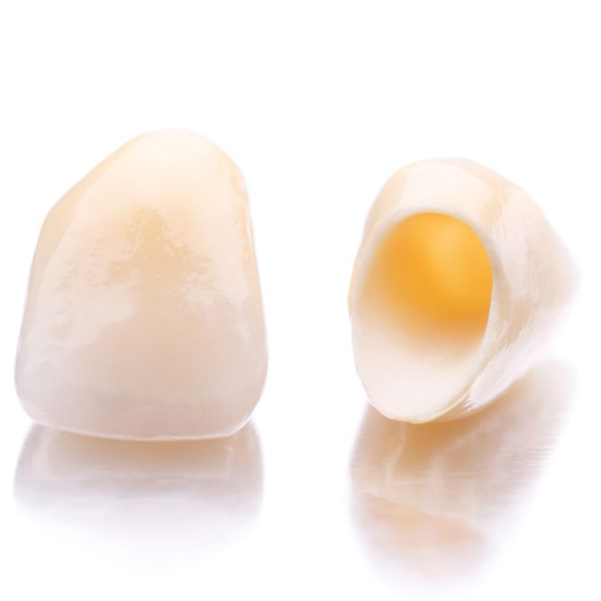 Photograph of two porcelain dental crowns on plain white surface