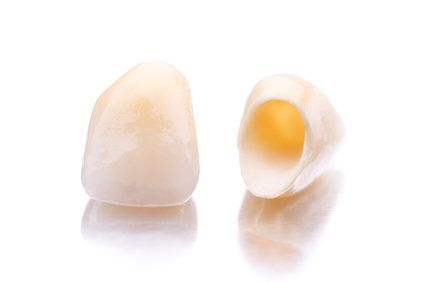 Two dental crowns sitting side by side
