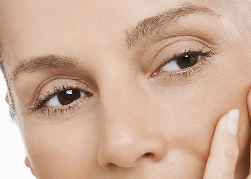 Woman with upper eyelid creases