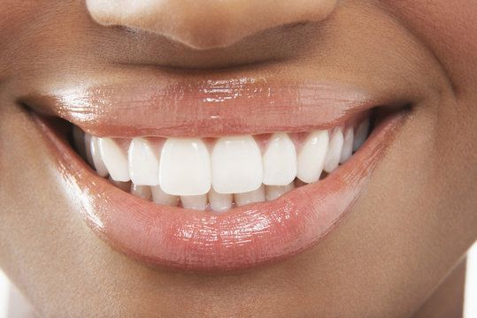 Extreme closeup of smile with porcelain veneers