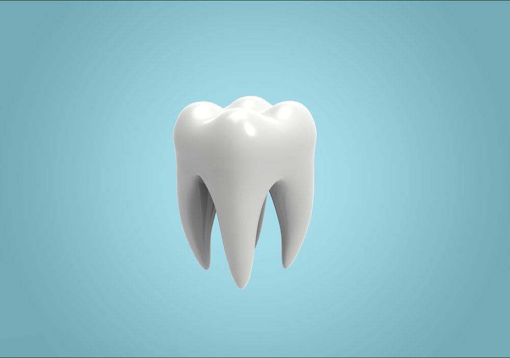 3D graphic of a wisdom tooth molar.