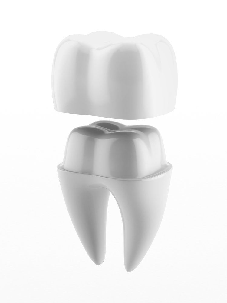 A tooth prepared for a crown