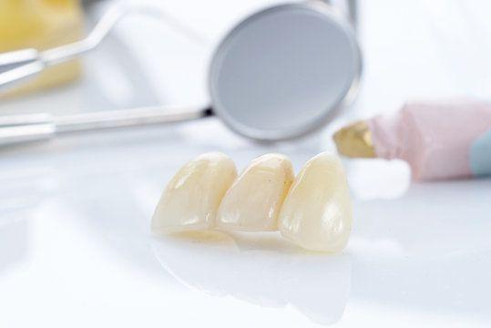 A dental bridge consisting of three prosthetic teeth.