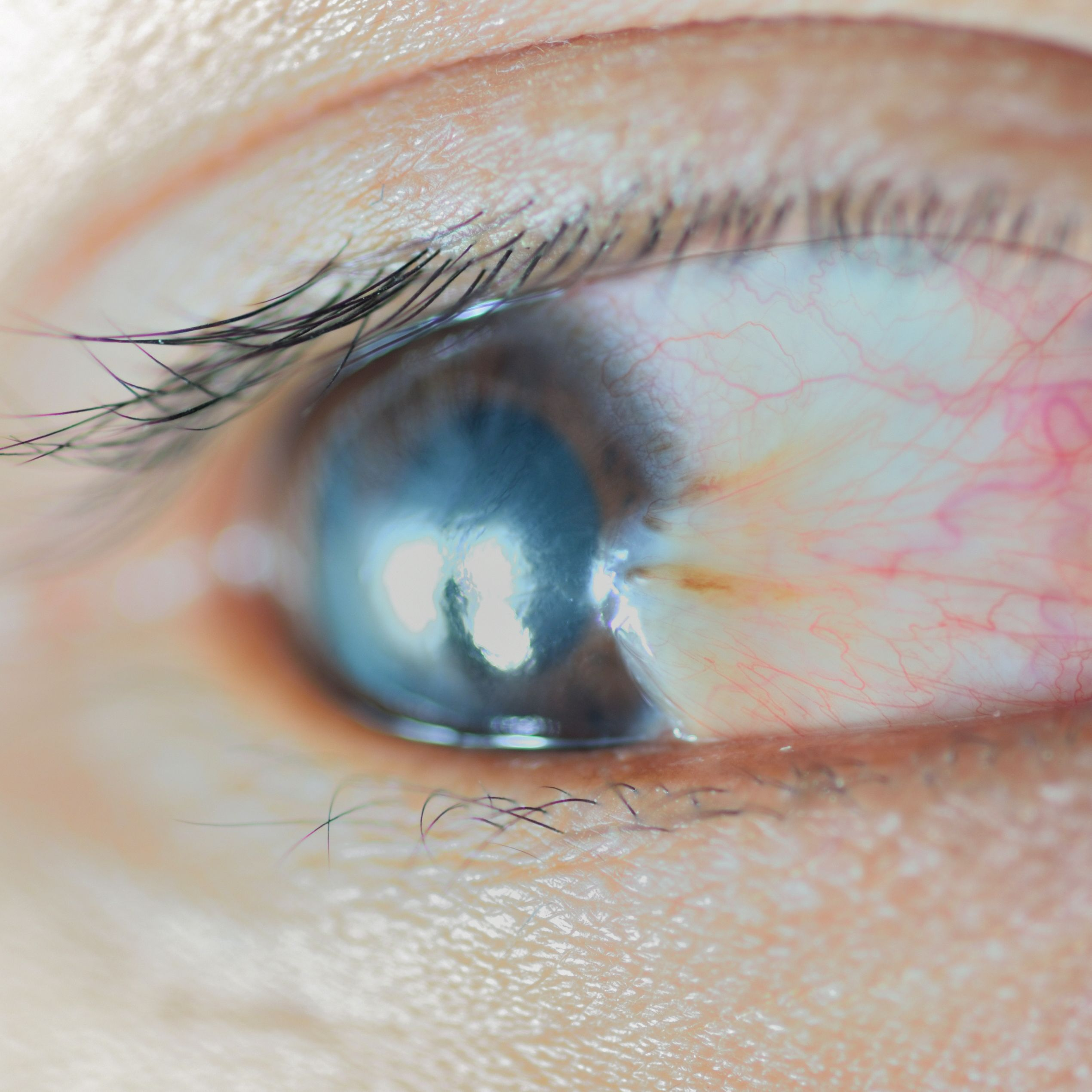 Pterygium Treatment Merrillville In Surfers Eye