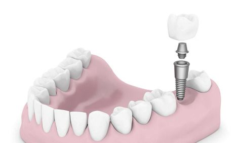 Illustration of jaw, missing tooth, and dental implant