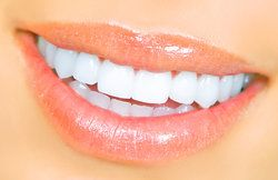 Close-up of a woman's radiant smile, free from tooth discoloration of any type