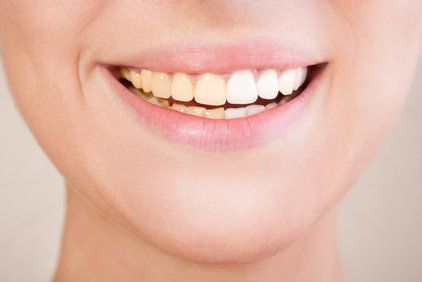 Smiling woman's mouth displaying half white teeth, half yellow teeth