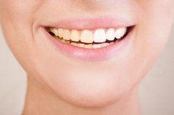 Smiling woman displaying half white and half yellow teeth