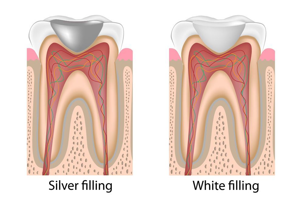 Side by side cutaway illustration of a silver filling and a white filling