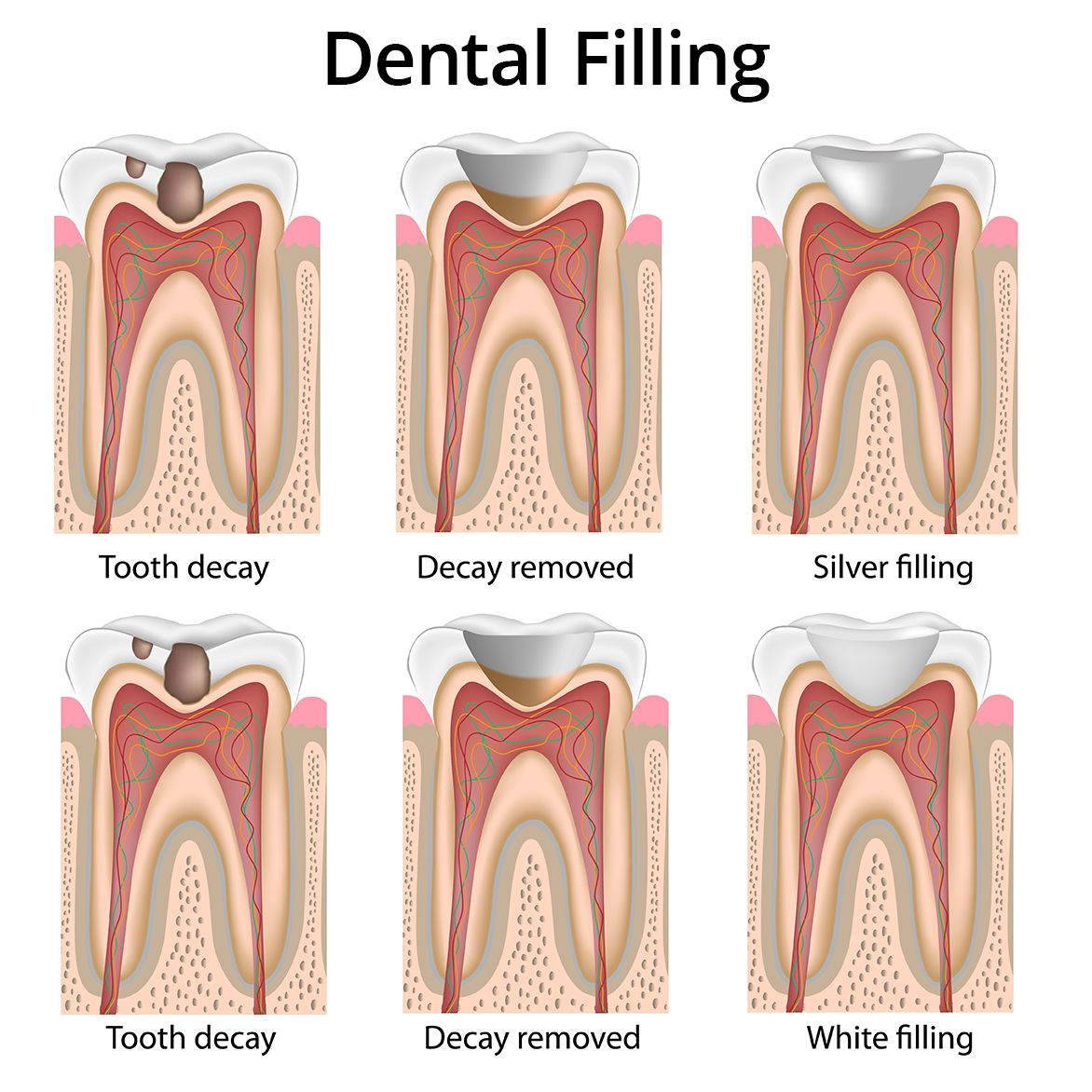 A diagram showing placement of a dental filling