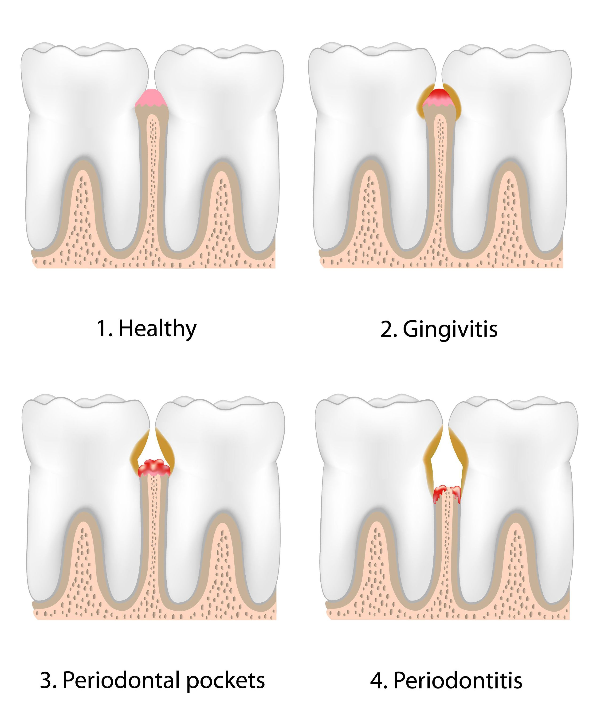 Four-panel digital illustration of gum disease stages