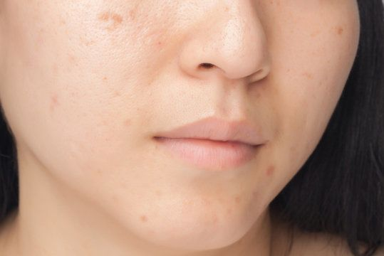 Close up of a woman's cheek with acne scars.