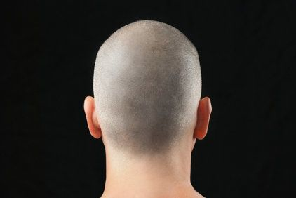 A picture of the back of a man's head after receiving micropigmentation treatment.