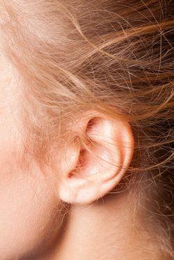 San Antonio Otoplasty for Cauliflower Ears