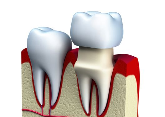 A graphic of a dental crown fitted on tooth