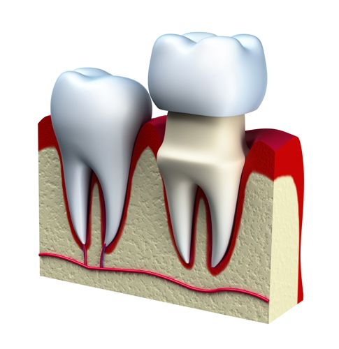Cross-section of two teeth, one receiving a dental crown