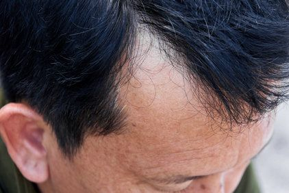 Close up of man's hairline