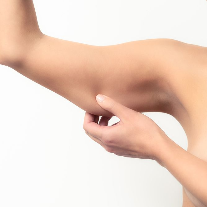 Woman pinching extra skin on her upper arm