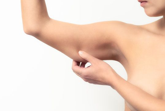 Woman pinching her loose upper arm skin.