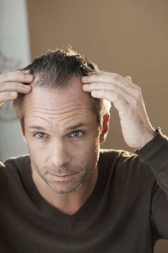 A man looking at his receding hairline