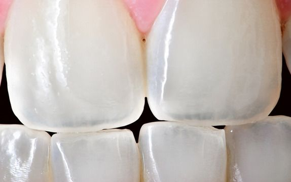 Close-up of teeth with dental bonding