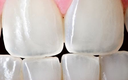 Very close up image of white teeth
