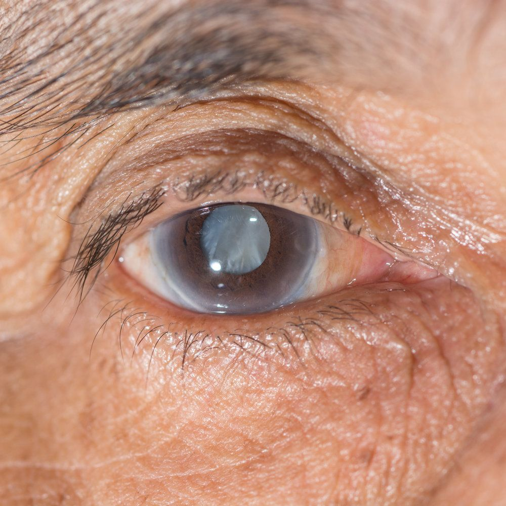 A man with a cataract