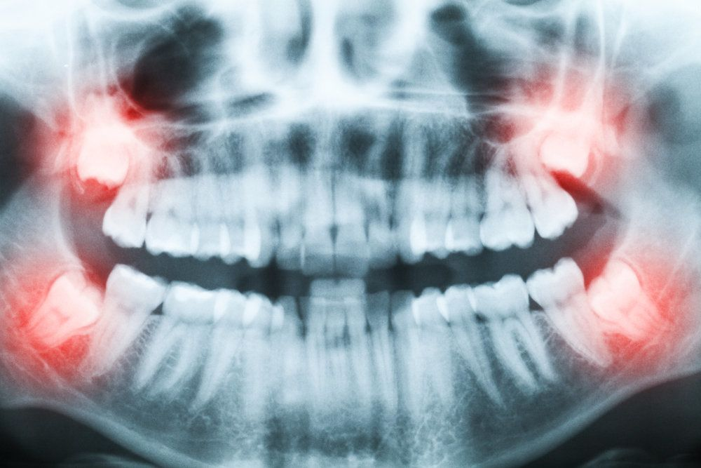 X-ray of the jaw highlighting wisdom teeth in red