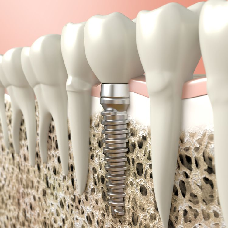 Illustration of dental implant in the jaw