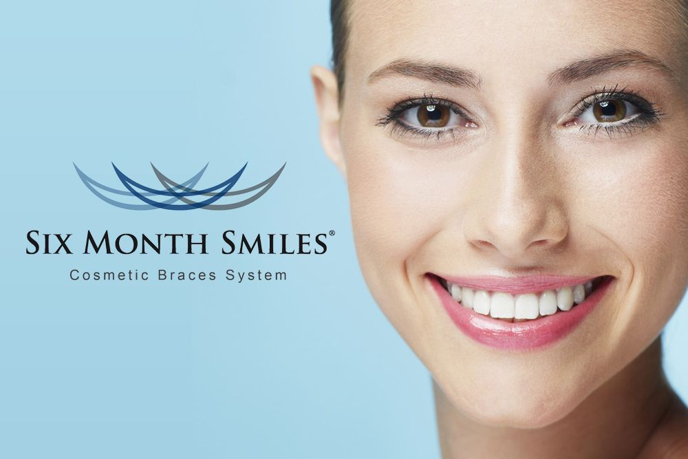 Smiling woman and Six Month Smiles logo