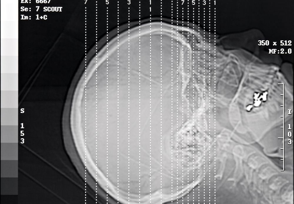 X-ray of a skull to diagnose potential traumatic brain injury