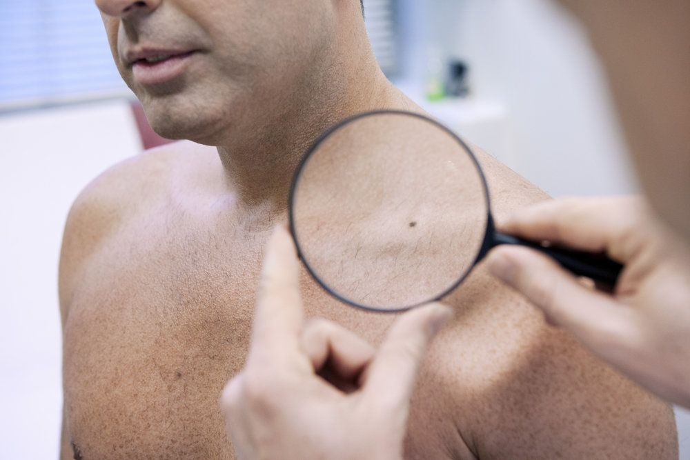 A dermatologist examining a mole on a patient's shoulder with a magnifying glass