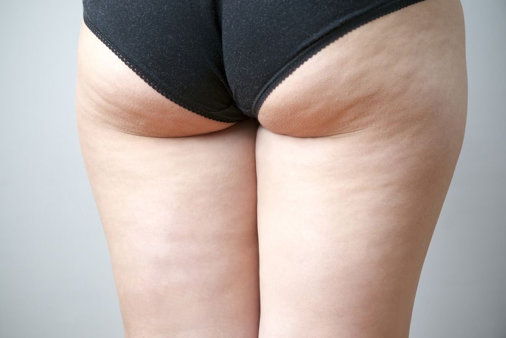 Photo of woman with cellulite on legs