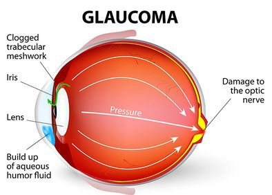A colorful graphic of an eye with glaucoma and aqueous humor buildup.