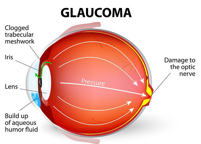 A diagram demonstrating glaucoma