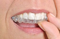 An Invisalign® tray sliding over the top row of teeth