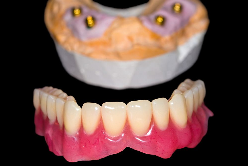 View of dental implants and implant dentures