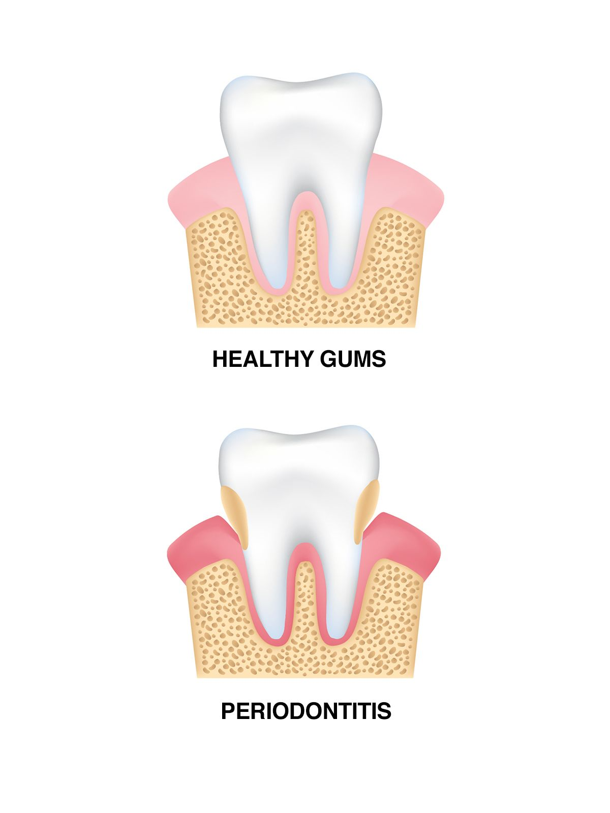 Healthy gums vs. those affected by gum disease