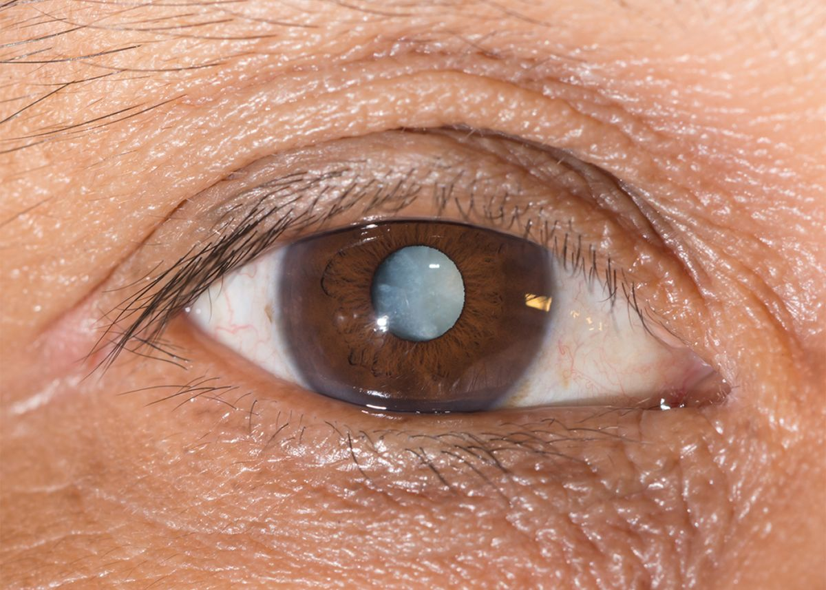 A clouded retina, indicating cystoid macular edema