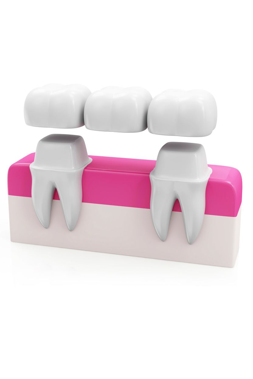 A crown-supported dental bridge