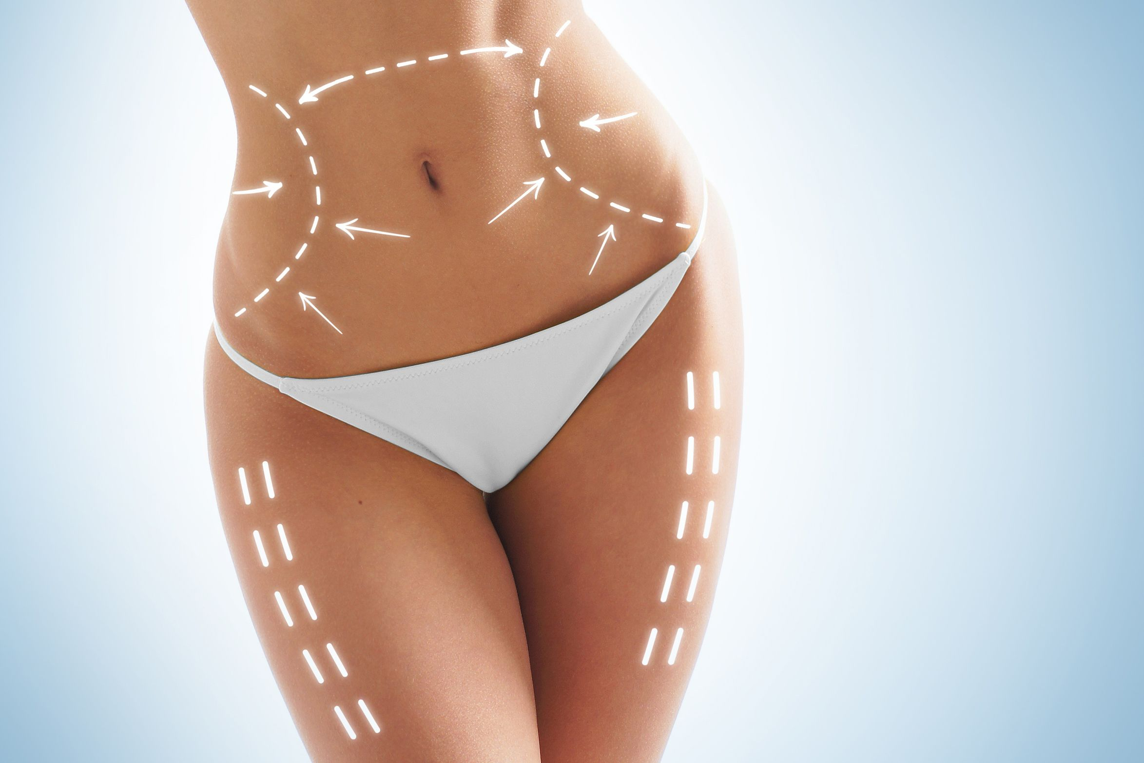 Woman's slim torso with dotted lines in liposuction treatment areas